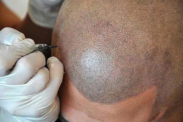 Reclaim Your Lost Hair with Hairline Microblading